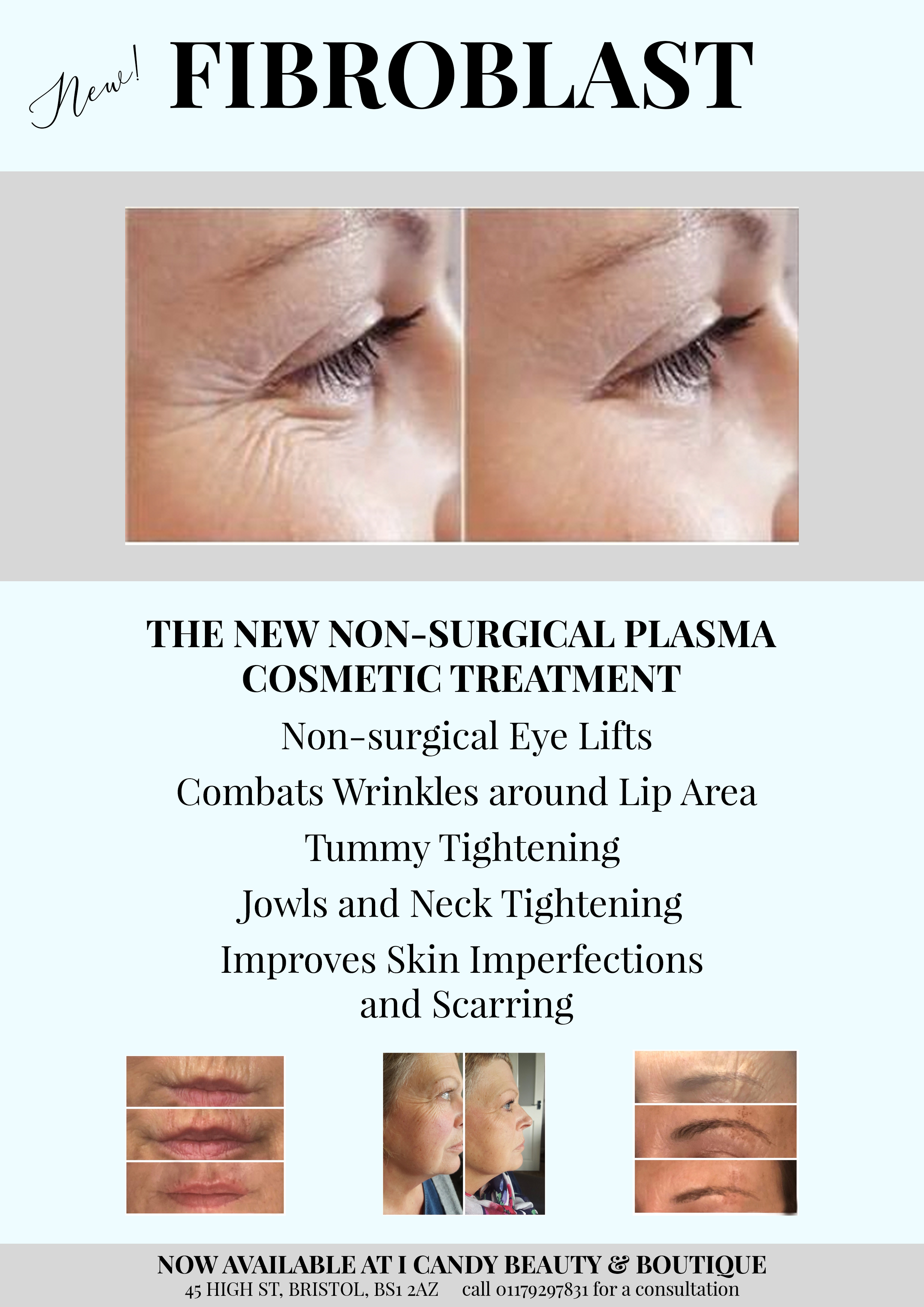 New Plasma fibroblast skin tightning
